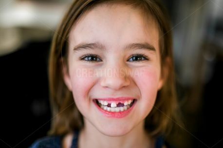 Missing teeth (67886)